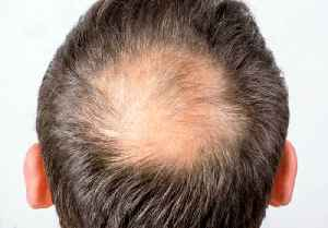 News video: Balding and Hair Loss Tied to Air Pollution in New Study