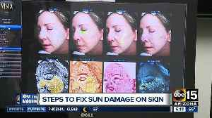 Sun damage and how to reverse its effects on your skin [Video]