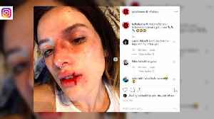 Bella Thorne accused of 'glamorising' physical abuse after sharing Halloween look [Video]
