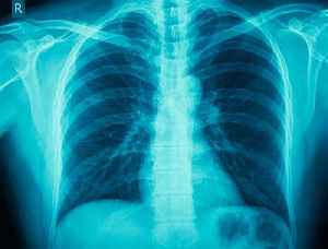 This Day in History: German Scientist Discovers X-Rays [Video]