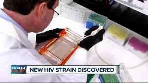 Ask Dr, Nandi: New HIV strain discovered [Video]