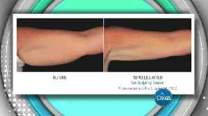 MD Body and Med Spa- Freezing Fat and Losing Inches [Video]