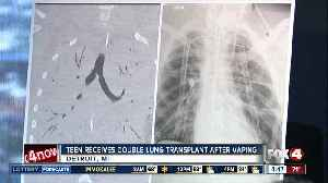 News video: Teen gets double lung transplant after vaping
