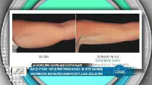 MD Body and Med Spa - CoolSculpting [Video]