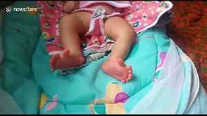 Unique baby born in India with 26 digits on her hands and feet [Video]