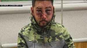 Man Beaten Behind Bars [Video]