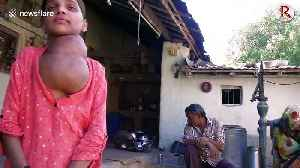 News video: Rare disease leaves 12-year-old girl in India with 'football-sized' tumour on her neck