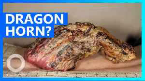 Brit man gets 5-inch dragon horn removed from back [Video]
