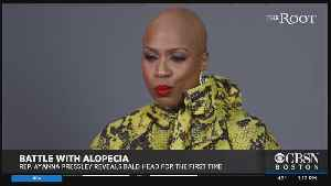 Battle With Alopecia: Ayanna Pressley Reveals Bald Head For First Time [Video]