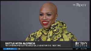 What Is Alopecia? Dr. Mallika Mashall Sheds Light On Hair Loss Condition [Video]