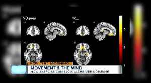 New study shows major link between exercise and brain health [Video]
