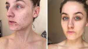 This Woman Stopped Washing Her Face For Six Months And Cured Her Acne [Video]