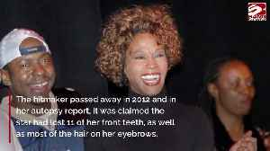News video: Whitney Houston missing 11 teeth at time of death