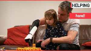 Dad becomes first military veteran to receive a 3D-printed multi-grip 'bionic arm' [Video]