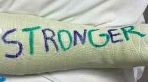 Britney Spears in a cast after breaking foot bone [Video]