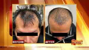 Hair Restoration Options for Men and Women [Video]