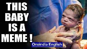 Viral pictures: Baby stares down doctors just moments after birth | Oneindia News [Video]