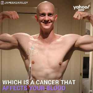 Meet James Kearsley, cancer survivor and accomplished fitness trainer [Video]