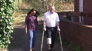 Wife makes prosthetic leg for husband [Video]