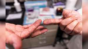 Scientists developing coronavirus vaccine delivered via fingertip-sized patch [Video]