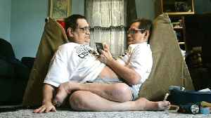 Meet Ronnie and Donnie Galyon: the world's oldest conjoined twins [Video]