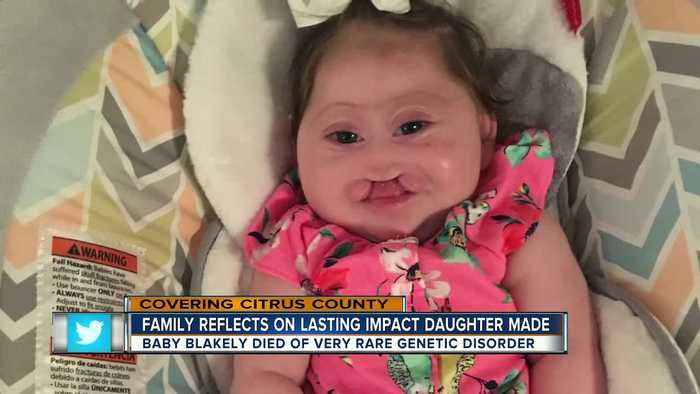 News video: Baby with rare genetic disorder teaches lesson of love and beauty in her short life