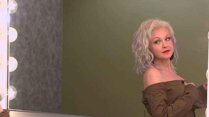 News video: Cyndi Lauper's New Song 'Hope' Inspired By Her Battle With Psoriasis
