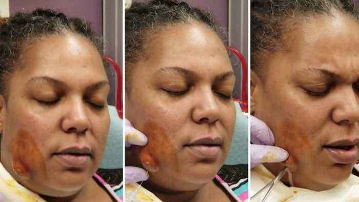 News video: Huge abscess erupts like volcano on woman's face in graphic video