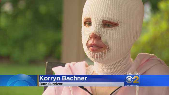 News video: Glenbard Bonfire Burn Victim On Her Way To Recovery