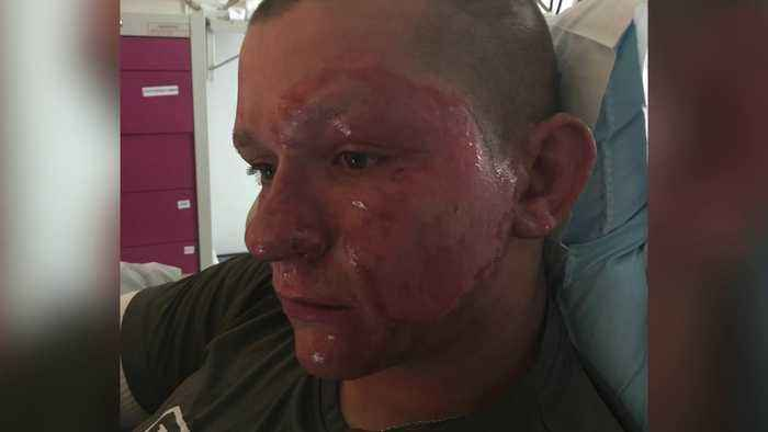 Teen Suffers Severe Burns From Giant Hogweed Plant