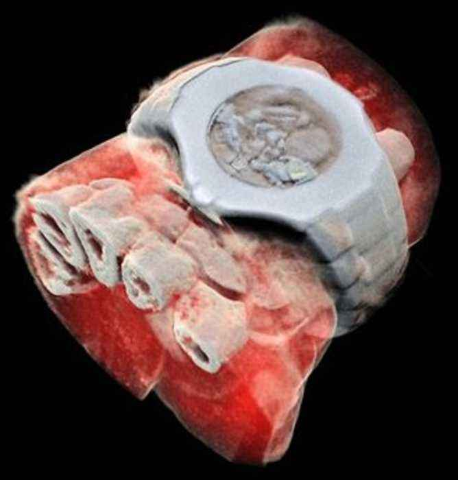 Scientists release world's first full-colour 3d x-rays