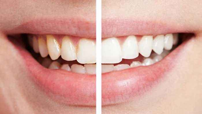 How To Whiten Teeth Naturally At Home Find Out One News Page Video
