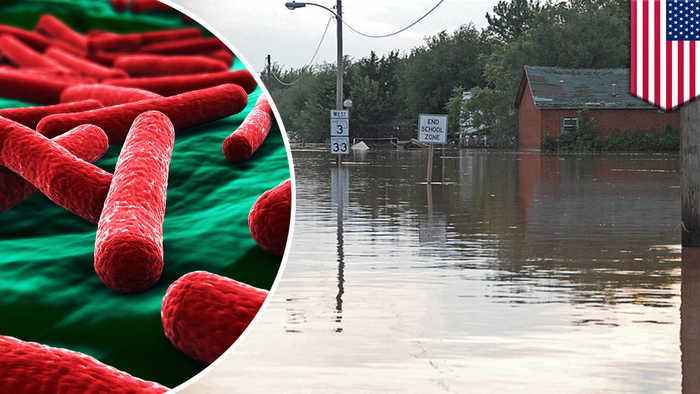 Diseases you could catch from contaminated flood waters