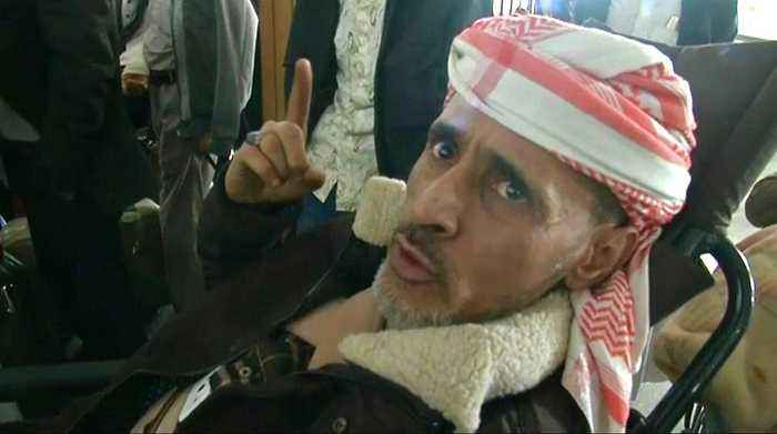 UN jet to move 50 wounded Houthi rebels to Oman