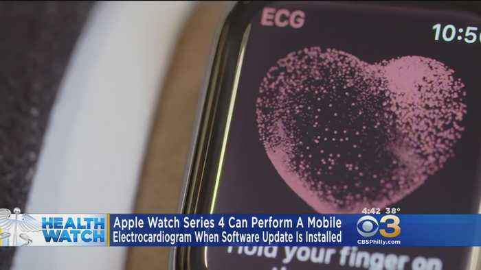 New Apple Watch Function Performs Mobile Electrocardiogram