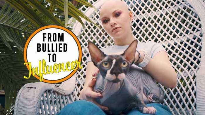 'People think that if you don't have hair, it's because you have cancer'