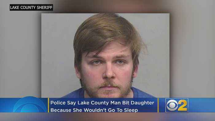 Police Say Man Bit Baby Daughter Because She Wouldn't Fall Asleep