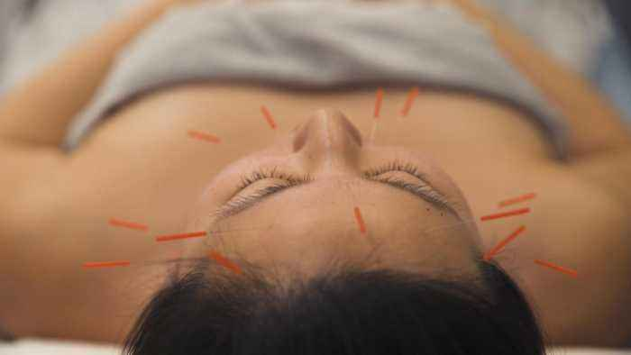 Beauty Now: Facial Acupuncture