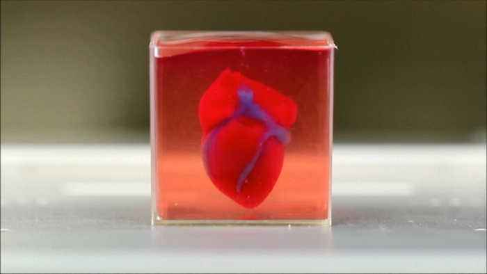 The World's First 3D-Printed Heart Model