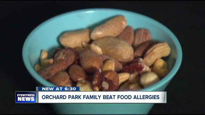 Family finds success in food allergy treatment