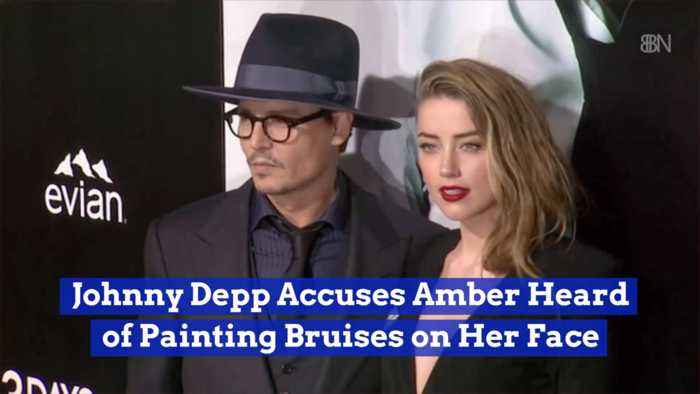Johnny Depp Believes Amber Heard Faked Her Bruises