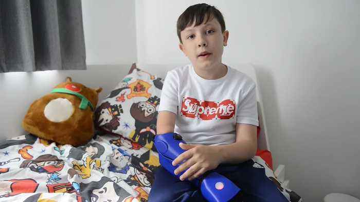 Schoolboy who play Xbox with chin given bionic arm