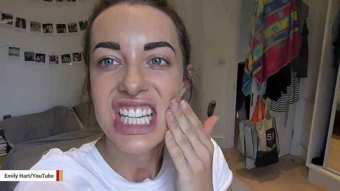 Report: Popular YouTuber Emily Hartridge Dies In Electric Scooter Crash