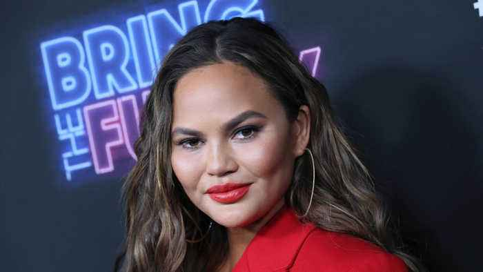 Chrissy Teigen battles excessive sweating with botox injections