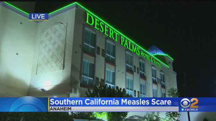 Measles Exposure Confirmed At Area Tourist Destinations After Contagious Teenager Visits SoCal
