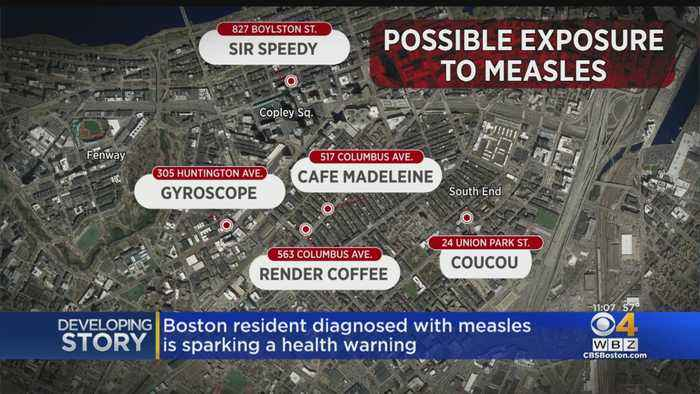 Boston Resident Diagnosed With Measles