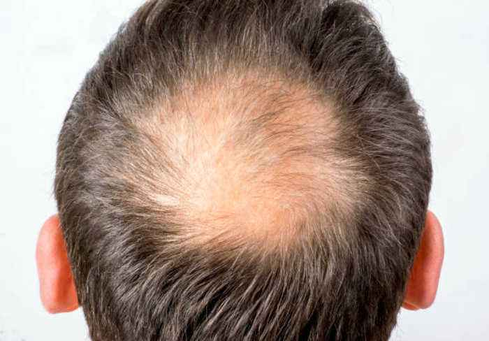 Balding and Hair Loss Tied to Air Pollution in New Study