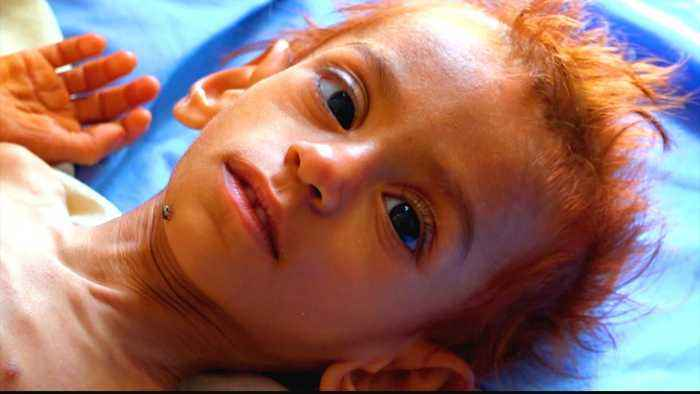 Yemen 'could lose six million children' from malnutrition