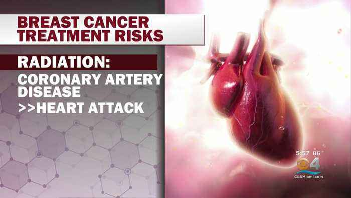 Cardio-Oncology Field Helping Cancer Patients With Heart Disease Risks Associated With Treatment