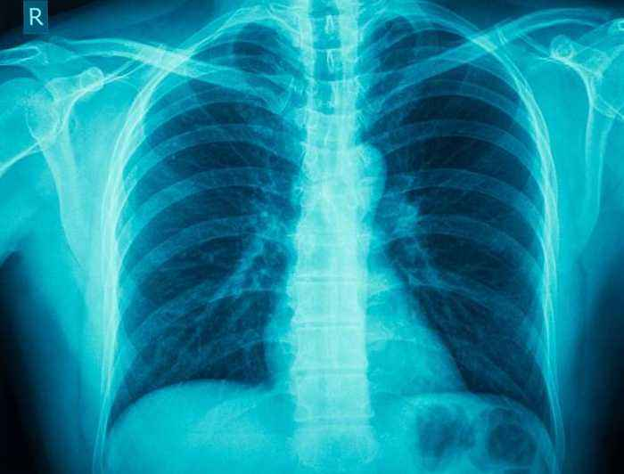 This Day in History: German Scientist Discovers X-Rays